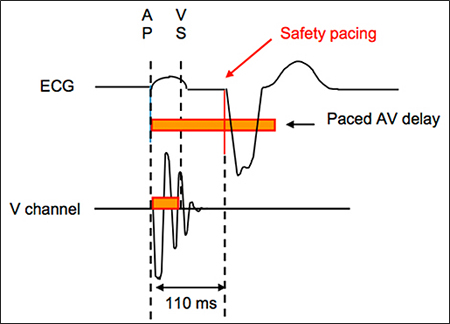 ventricular safety pacing vsp feature medtronic academy