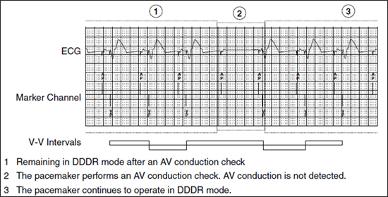 Managed Ventricular Pacing (MVP) Feature | Medtronic Academy