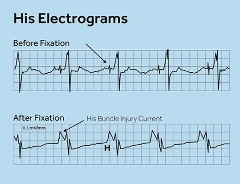 Implant Cards further Micro likewise Fda Approves Under Skin Defibrillator Article 1 furthermore Detailedresult additionally Skin Erosion. on pacemaker patient information