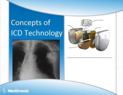 Slide 1 - Concepts of ICD Technology